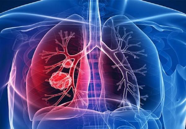 6 نشانه که ریه های تان نیازمند پاکسازی است