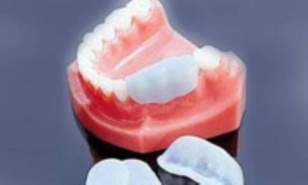 روکش های موقتی دندان
